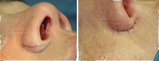 reducción de alas nasales
